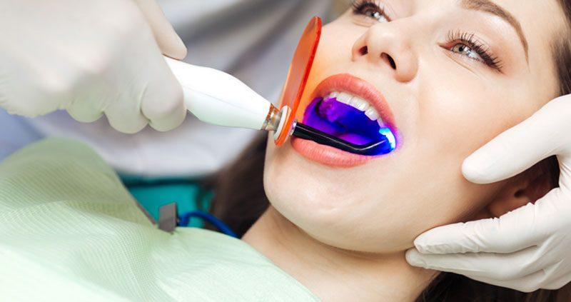 teethwhitening-800x423