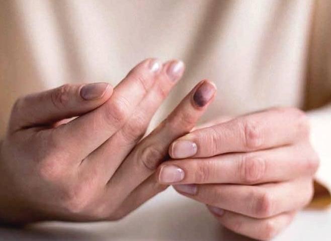 تست سنجش سلامت بدن -ناخن ها