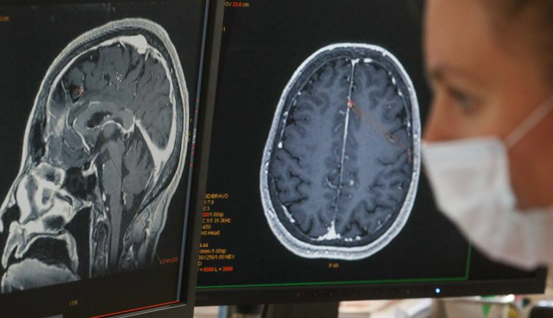تاثیرات کرونا بر مغز